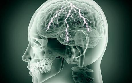 Dieta cetogénica y tumor cerebral
